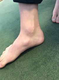 有痛性外脛骨で悩んでいたY.Aくんの足