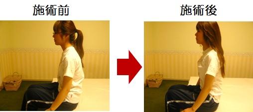 肩こりで悩んでいた新井さんの比較写真