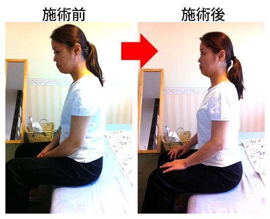 施術後の姿勢の変化