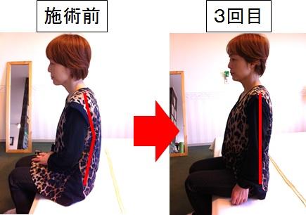 頚椎ヘルニアで悩んでいた木津さんの施術変化