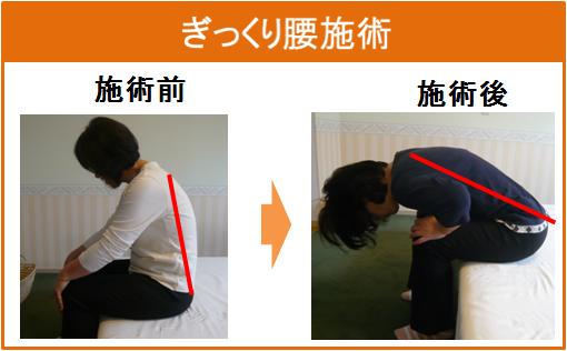Nさん ぎっくり腰施術変化
