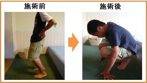 13歳 男子 大川 成長痛 少年野球