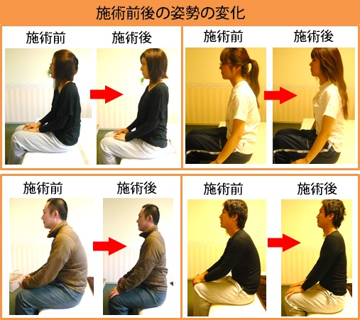 変化3 施術後の姿勢
