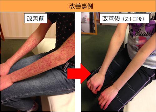 アレルギー性紫斑病
